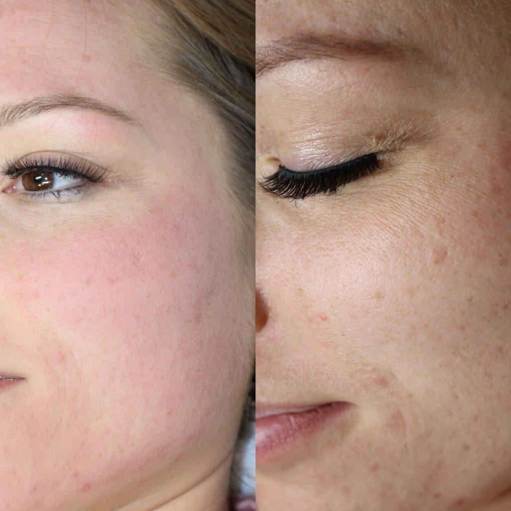 Bb skin behandlung